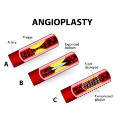 angioplast vector image vector image