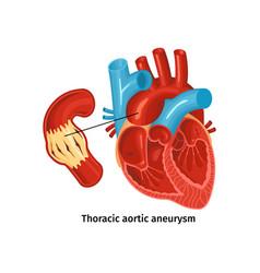 Heart disease anatomy poster vector