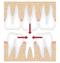 missing tooth vector image