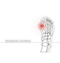 rheumatoid arthritis continuous line drawing vector image