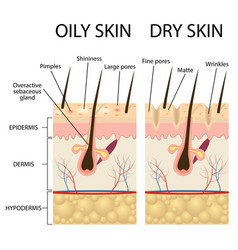 Human skin types and conditions vector