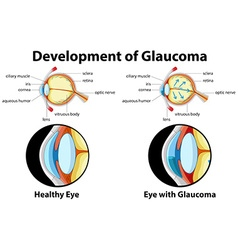 Diagram showing development of glaucoma vector image