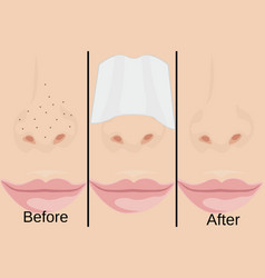 Blackheads on nose and treatment vector