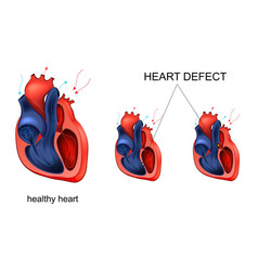 Heart disease defect vector