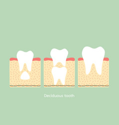 Permanent tooth located below primary tooth vector
