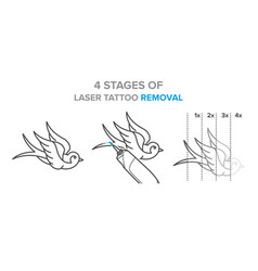 4 stages of laser tattoo removal vector