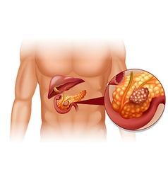 Pancreas cancer in human body vector image