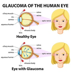 Glaucoma of the human eye vector image