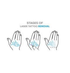 Stages of laser tattoo removal vector