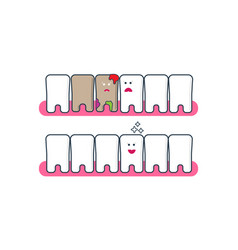 teeth icons before and after bleaching vector image
