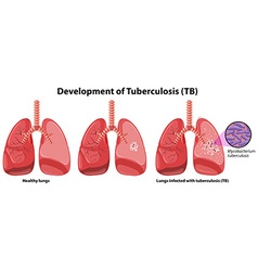 Chart showing development of tuberculosis vector image