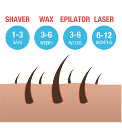 Comparison types hair removal laser vector