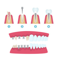 Dental crowns and implantation vector