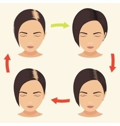 Woman with different stages of hair loss vector image