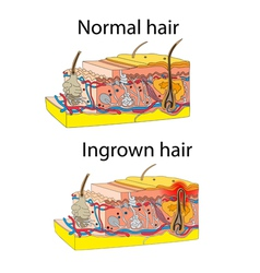 Ingrown and normal hair vector