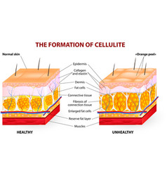 Cellulite vector