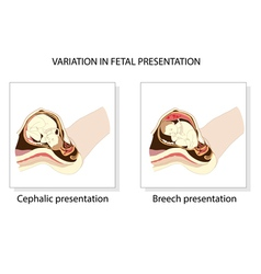Variation in fetal presentation vector image vector image