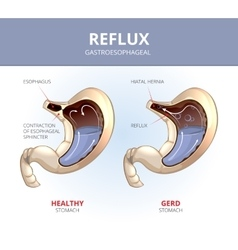 Gastroesophageal reflux disease Healthy and sick vector