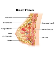 Diagram of breast cancer vector
