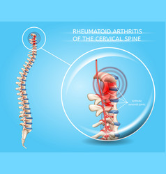Rheumatoid arthritis of cervical spine vector
