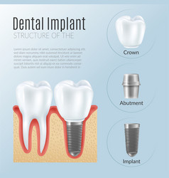 Realistic dental implant infographics vector