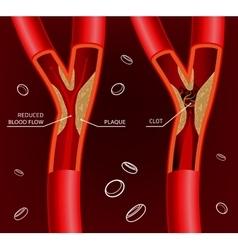 Blood Vein Image vector image