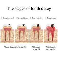 Tooth decay formation vector image vector image