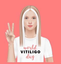 World vitiligo day a woman vector