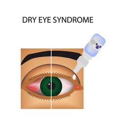 Conjunctivitis redness eye vessels eye drops vector