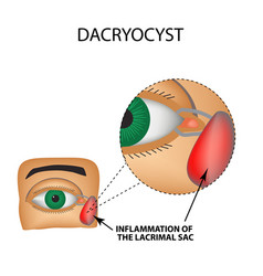 Dacryocyst inflammation of the lacrimal sac vector