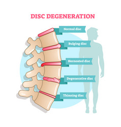 Disc degeneration flat diagram vector