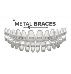 Metal braces human jaw braces on teeth vector