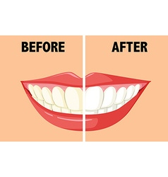 Before and after brushing teeth vector