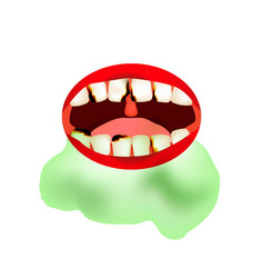 Caries smell from mouth halitosis the vector