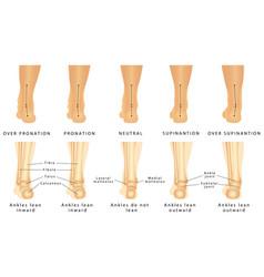 foot deformation vector image vector image
