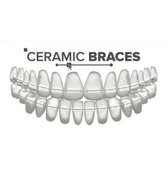 Ceramic braces human jaw dentist vector