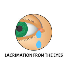 Lacrimation from eyes symptom of vector