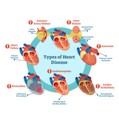 types of heart disease collection vector image vector image