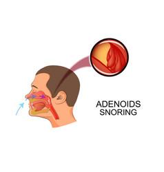 Adenoids cause snoring vector