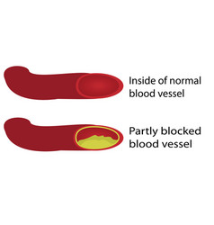 healthy and blocked blood vessels vector image