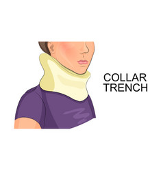 Collar trench vector