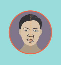 Bells palsy icon vector