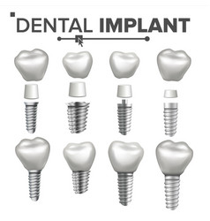 dental implant set dental clinic vector image vector image