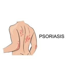 Psoriasis Dermatology Allergy vector image