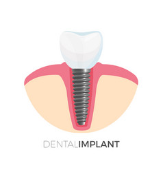 Dental implant poster with image on vector