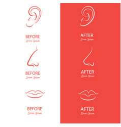 ears nose and lips reshaping before and after vector image
