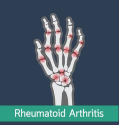 rheumatoid arthritis icon vector image vector image