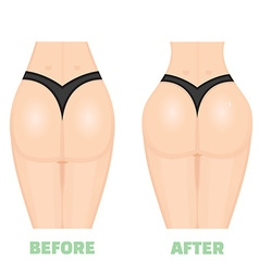 Buttocks breech butt rear nates augmentation vector