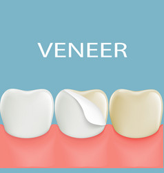 Dental veneers on a human tooth stock vector