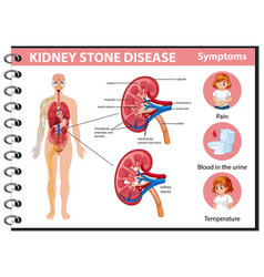 Kidney stones disease and symptoms infographic vector